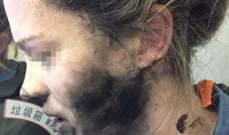 إنفجار سماعة الرأس في وجه سيدة