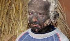 مرض نادر كاد يحول هذا الطفل إلى حجر.. بالصور