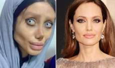 لن تصدقوا كم كانت جميلة شبيهة انجيلينا جولي المخيفة قبل عمليات التجميل! بالصور