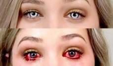 طفلة تفقد بصرها بسبب عدسات لاصقة