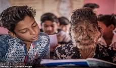 شاهدوا الطفل الذئب من الهند يظهر لأول مرة في الاعلام