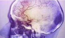 أسباب الجلطة الدماغية وأنواعها إضافة الى طرق الوقاية منها