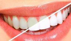طرق غير مكلفة تساعد في تبييض الأسنان