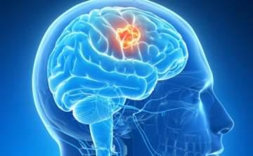 إحذروا أورام الدماغ.. منها ما يؤدي الى أمراض سرطانية