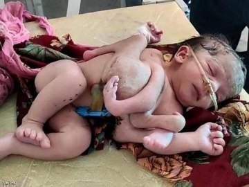 صدمة في الهند.. ولادة طفلة بـ4 أرجل و3 أيادٍ!