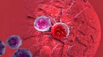 أطباء يابانيون يجدون علاجاً لمرض السرطان