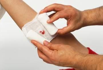علاج للجروح