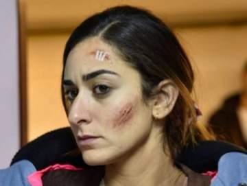 ما سرّ إصابة أمينة خليل في وجهها؟- بالصور