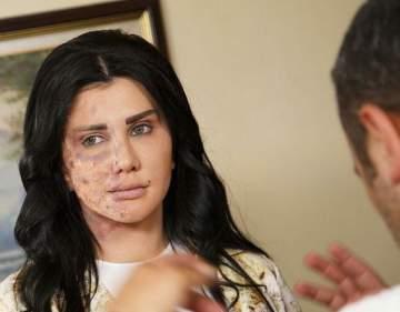 جيني إسبر تتعرض لتشوه في وجهها