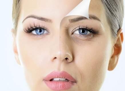إنتو الجمال مع Mary: الهالات السوداء تحت العينين.. هذه أسبابها وعلاجها