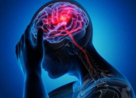 اعرف عوارض الجلطة الدماغية قبل فوات الأوان