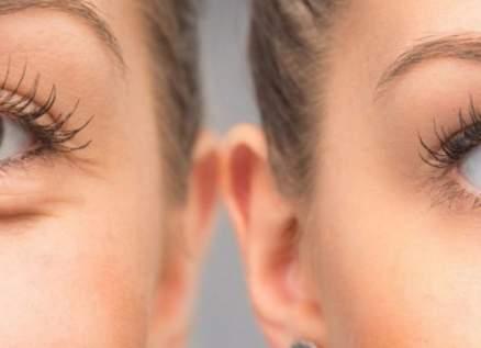بالفيديو - هذا هو الحل الأمثل لمعالجة إنتفاخ الجيوب الدهنية تحت العينين