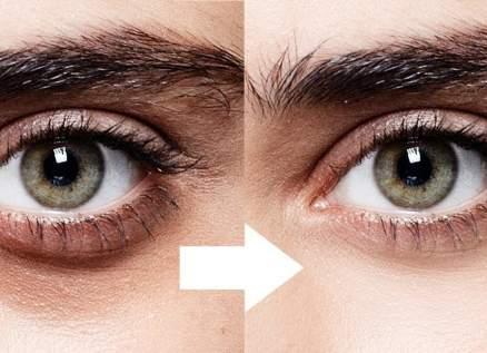 بالفيديو - هكذا تتخلصون من الهالات السوداء تحت عينيكم بطريقة سهلة