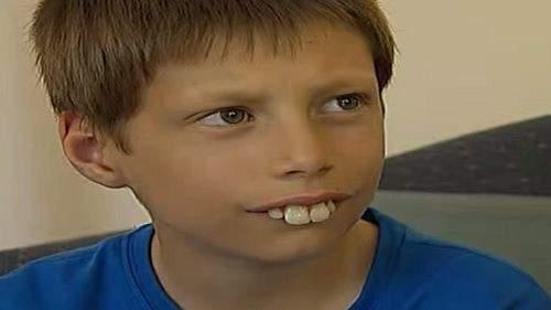 سخروا منه لان أسنانه كانت تشبه الأرنب لكن التحول أبهر الجميع-بالفيديو