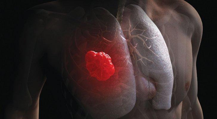ممثلة عالمية تكافح سرطان الرئة