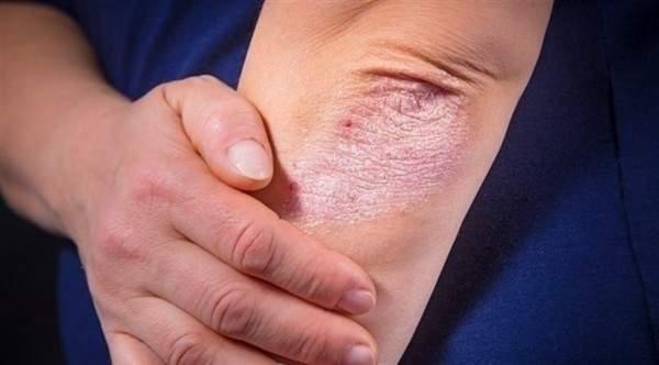 بهذه الطريقة يمكنكم تخفيف حكة الجلد في الشتاء