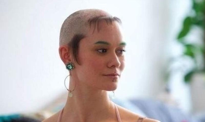 إمرأة أدمنت على انتزاع شعرها حاولت الإنتحار وهذا ما وصلت إليه
