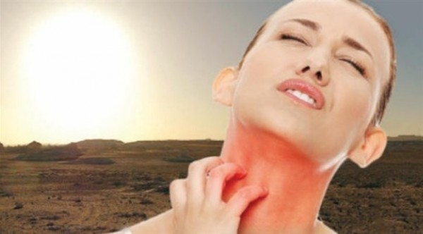 هذه الأعراض تنذر بحساسية الشمس