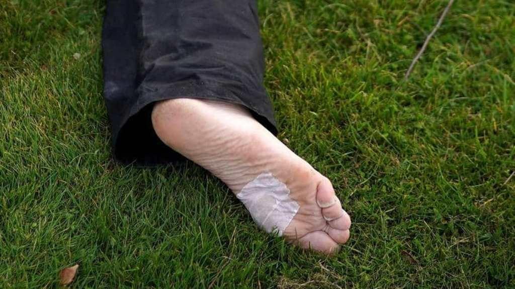 رجل يفقد ساقه بسبب جرح بسيط