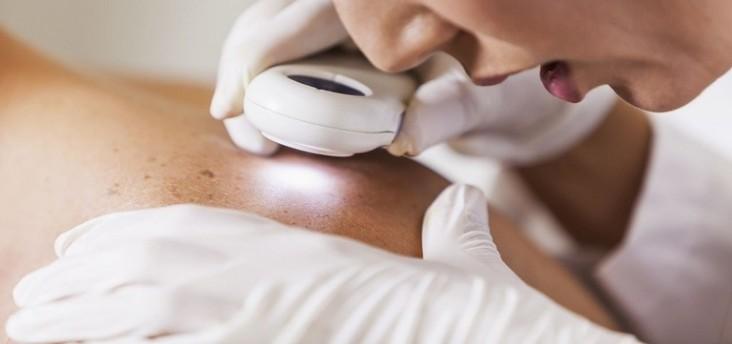إكتشاف عضو بشري جديد في الجلد